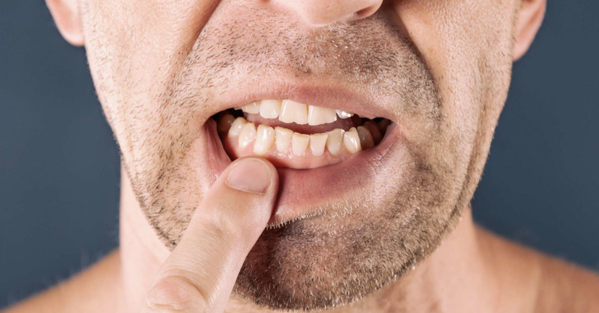 Infection in Teeth